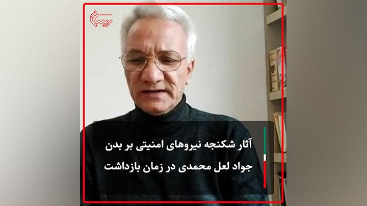 آثار شکنجه نیروهای امنیتی بر بدن جواد لعل محمدی در زمان بازداشت